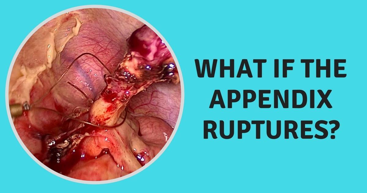 Burst Appendix Related Keywords - Burst Appendix Long Tail ...